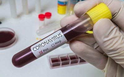 #COVID19 FAQ regulatorias – ¿Que requisitos tienen las neveras y congeladores para vacunas COVID19?  Son producto sanitario? hay normativa?